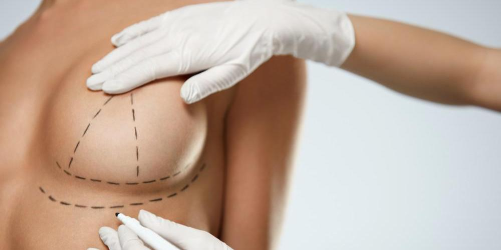 Surgery for Sagging Breast